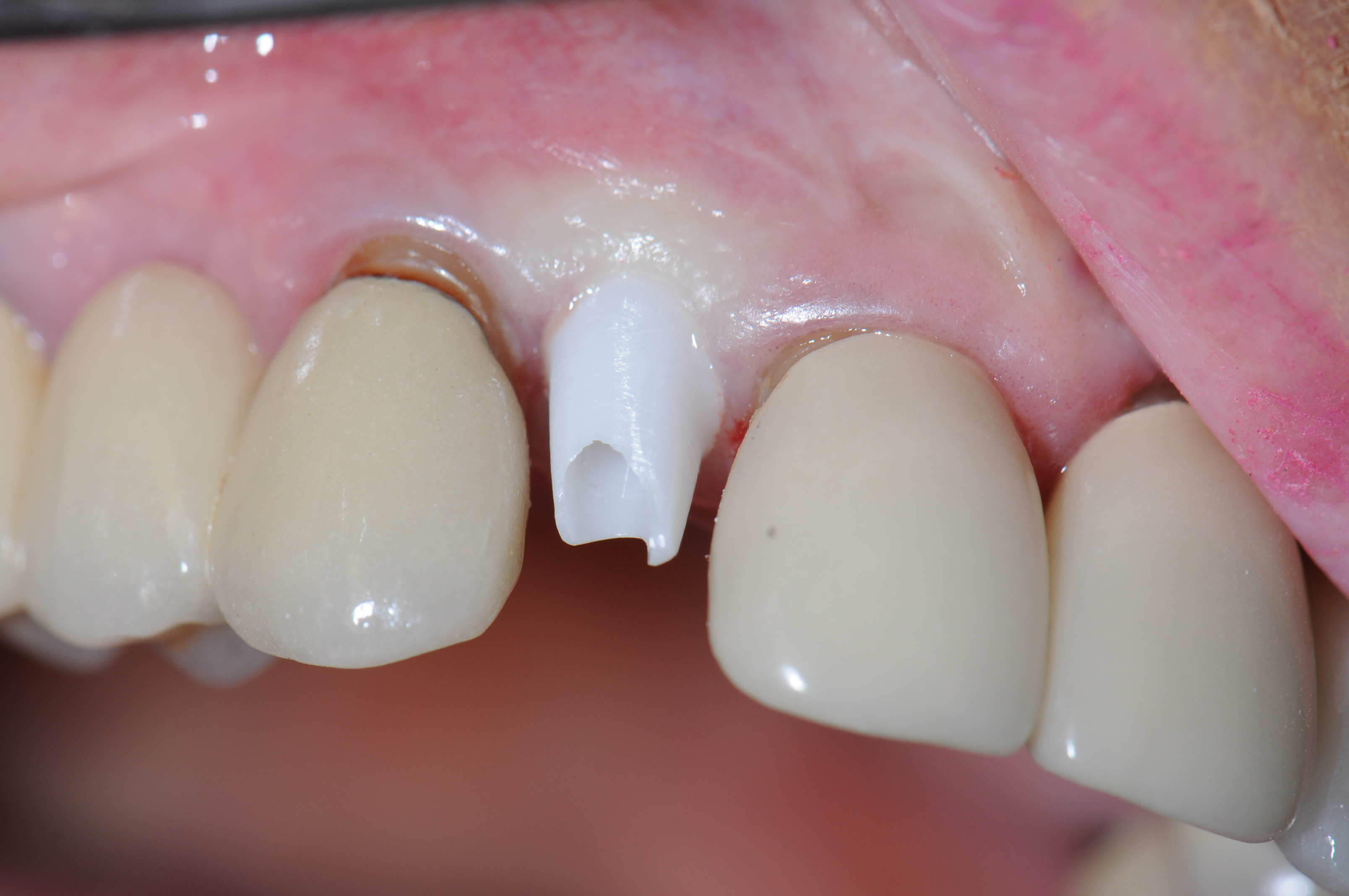 Before - Custom Abutments, Patient 2