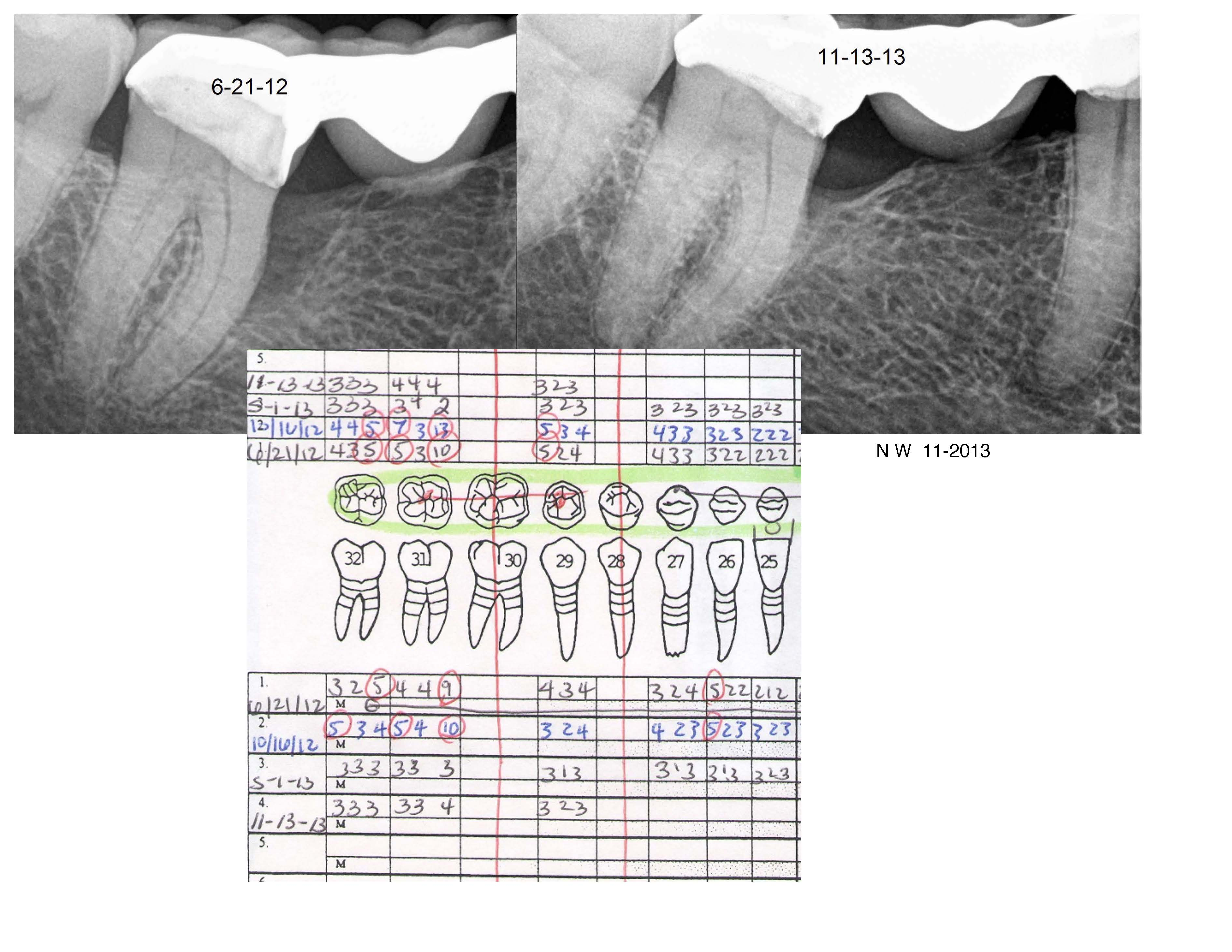 Before and After LANAP Under a Dental Bridge